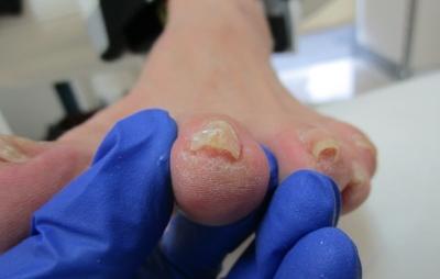 親趾以外の爪も施術OK
